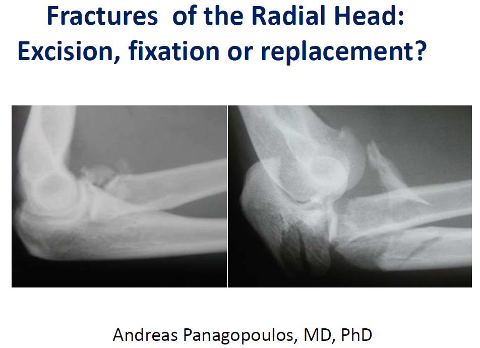 Fractures of the Radial Head. Excision, fixation or replacement