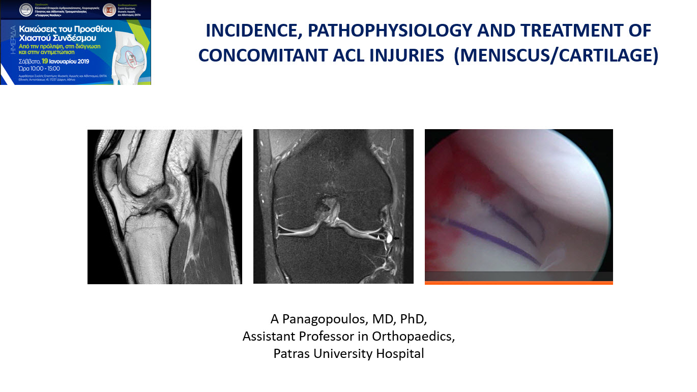 Concomitant ACL injuries